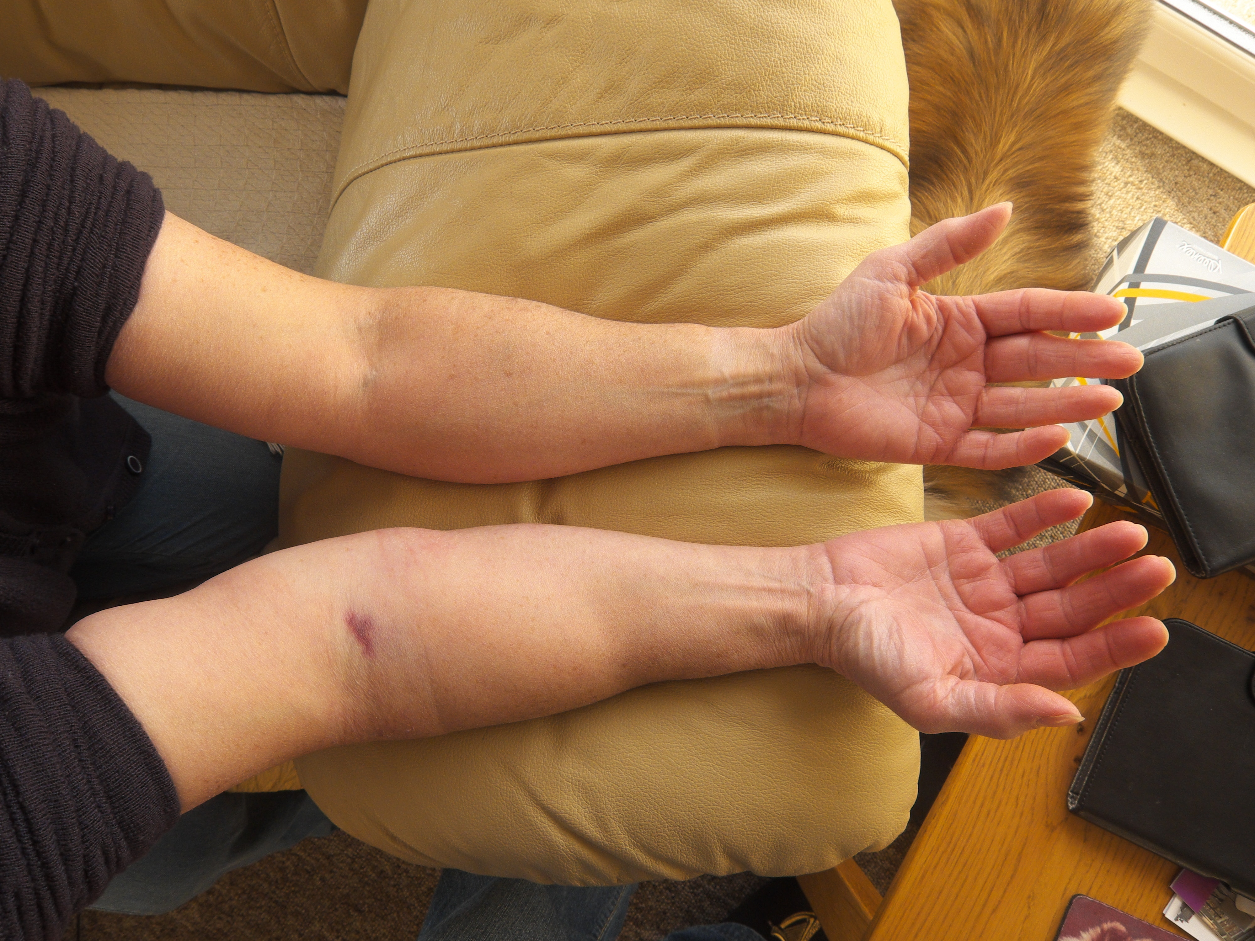 An image depicting a person suffering from swelling of one forearm symptoms