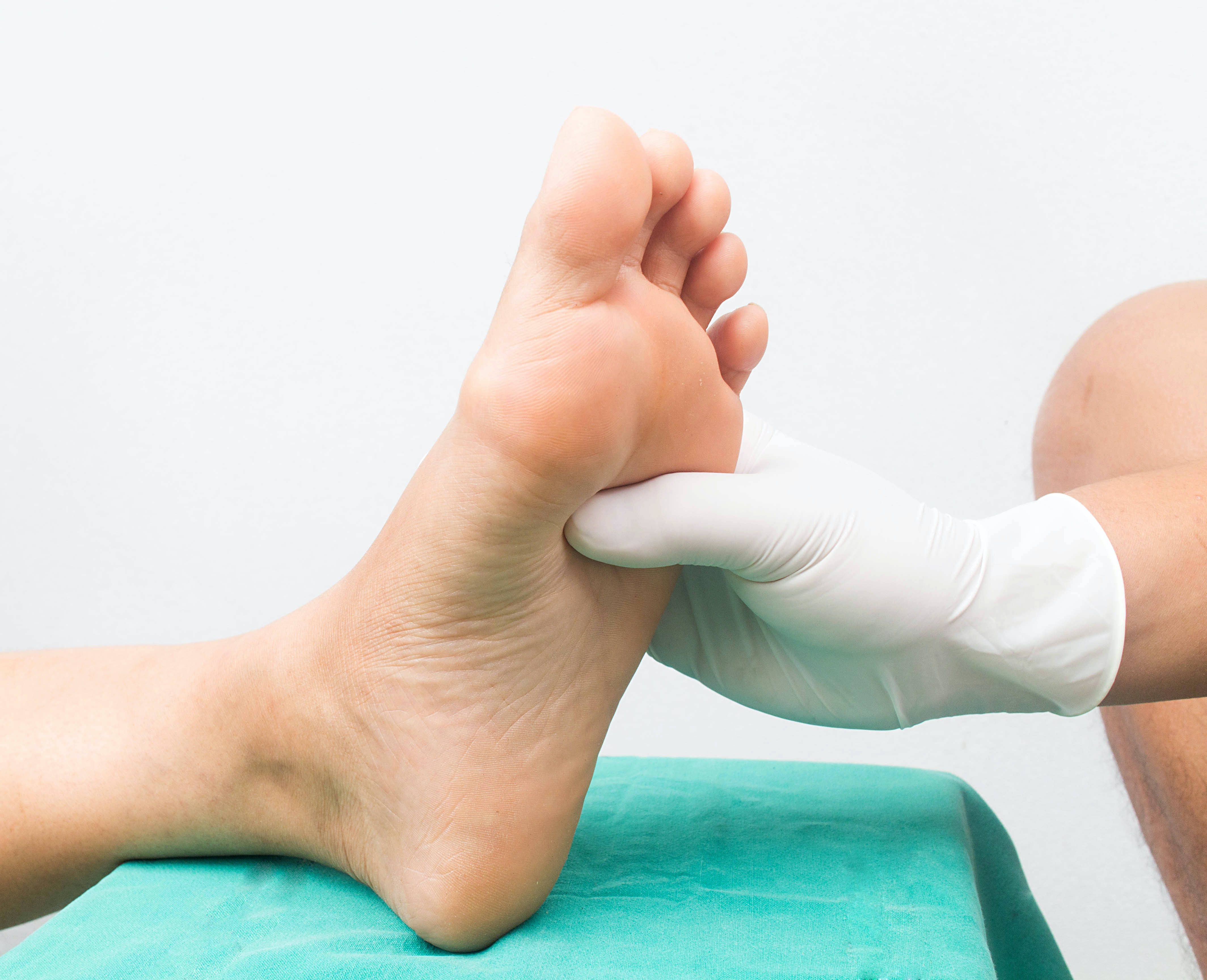 An image depicting a person suffering from swelling of the sole of the foot symptoms
