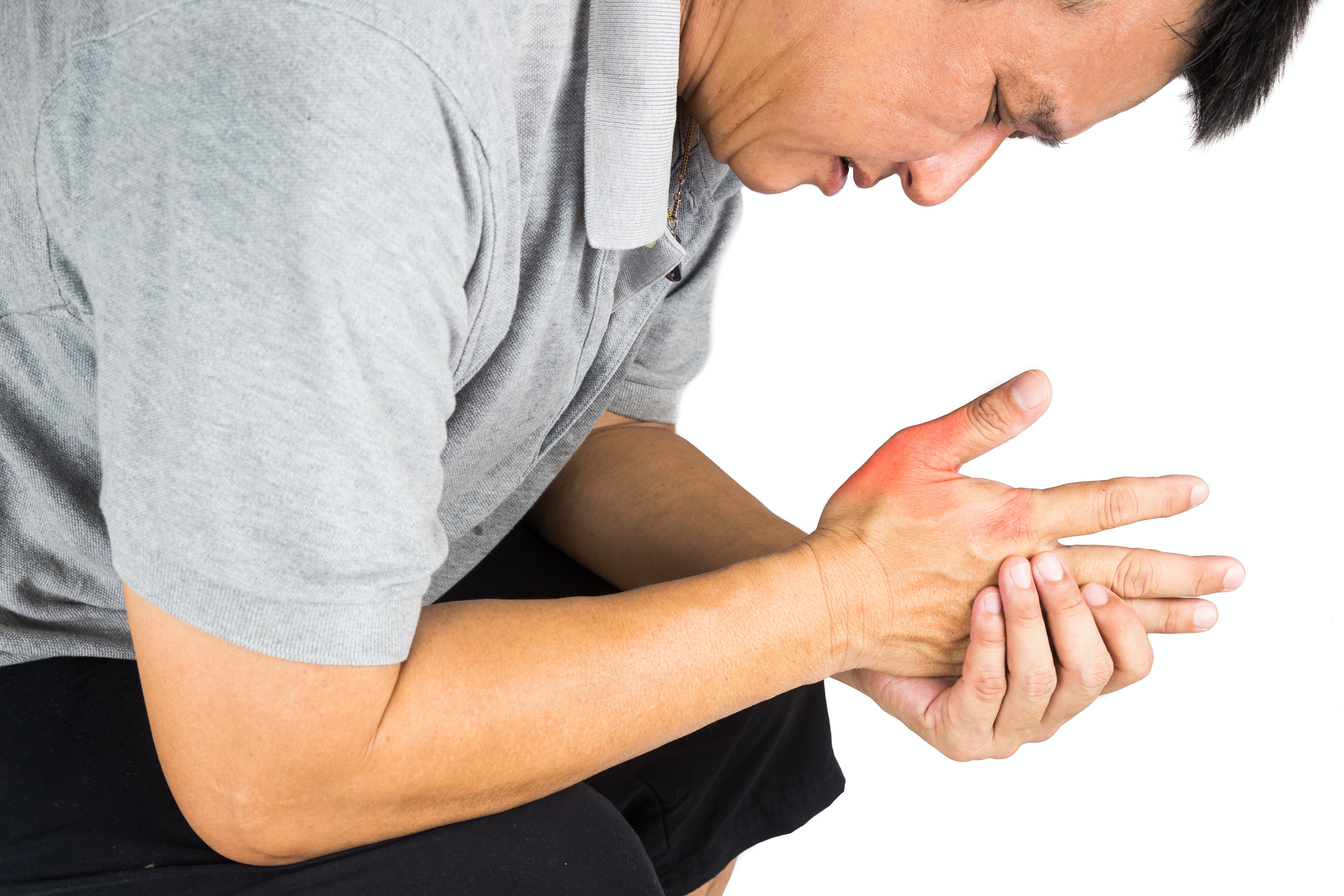Slylo finger on the hand: causes, treatment and prevention