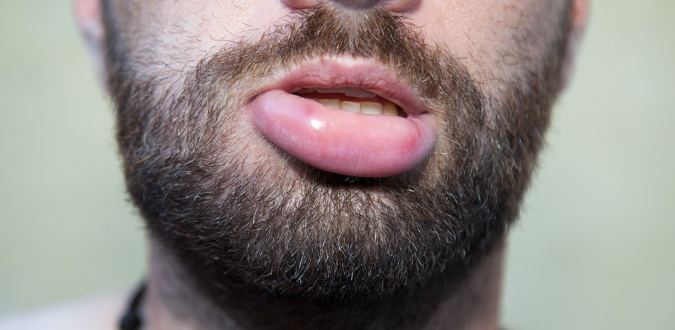 cracked inner corner of lips