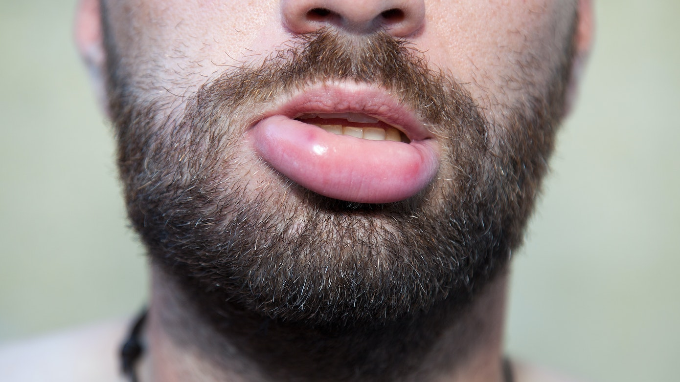 Swollen Lips   3 Reasons Why Your Lips are Swelling   Buoy
