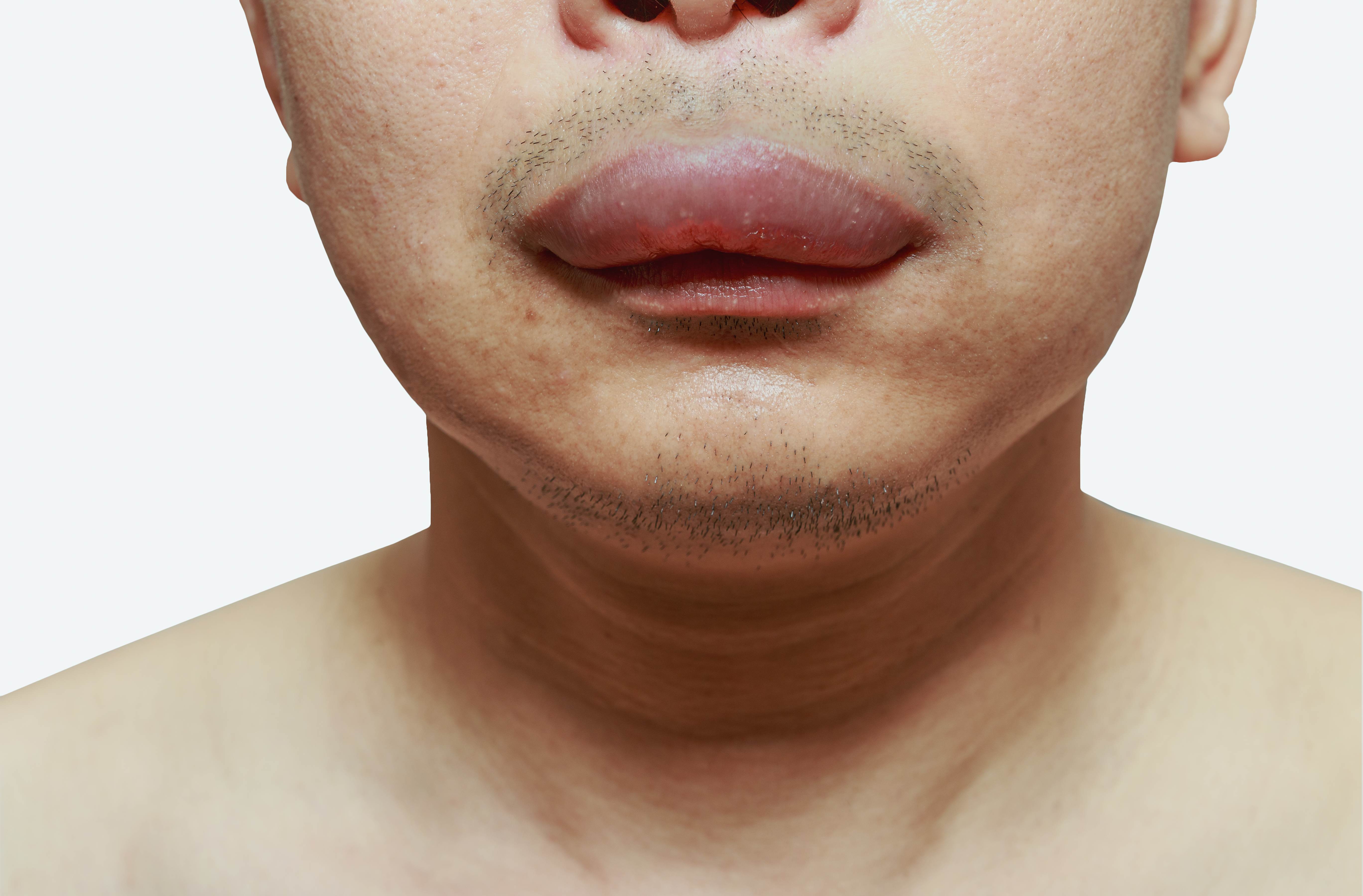Swollen Mouth   7 Reasons for Mouth Swelling   Buoy