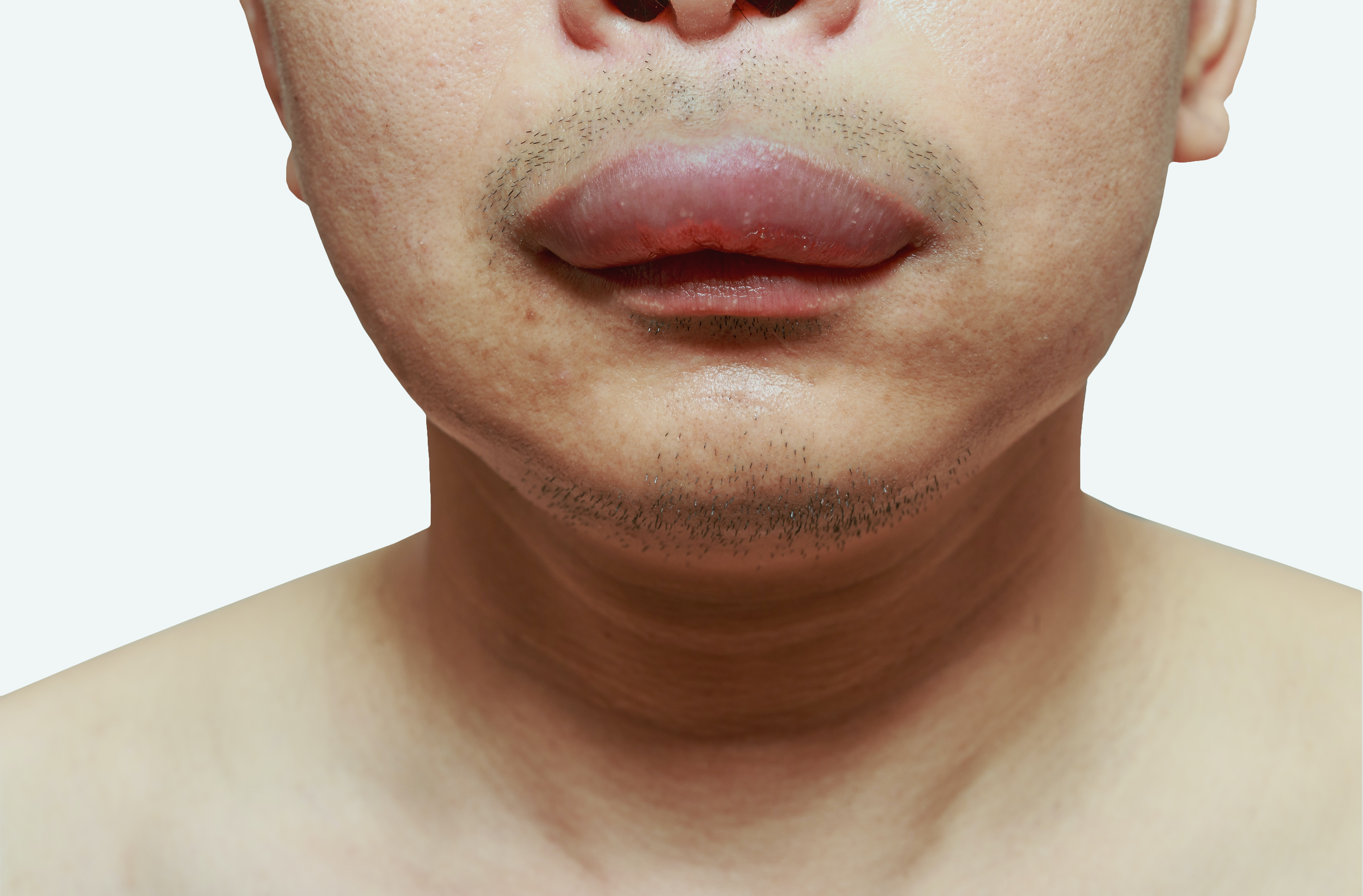 An image depicting a person suffering from swollen mouth symptoms