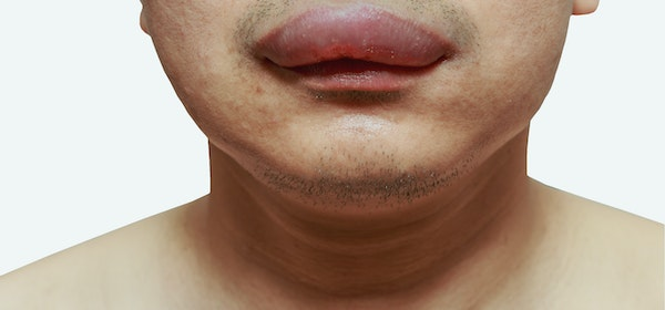 Swollen Mouth | 7 Reasons for Mouth Swelling | Buoy