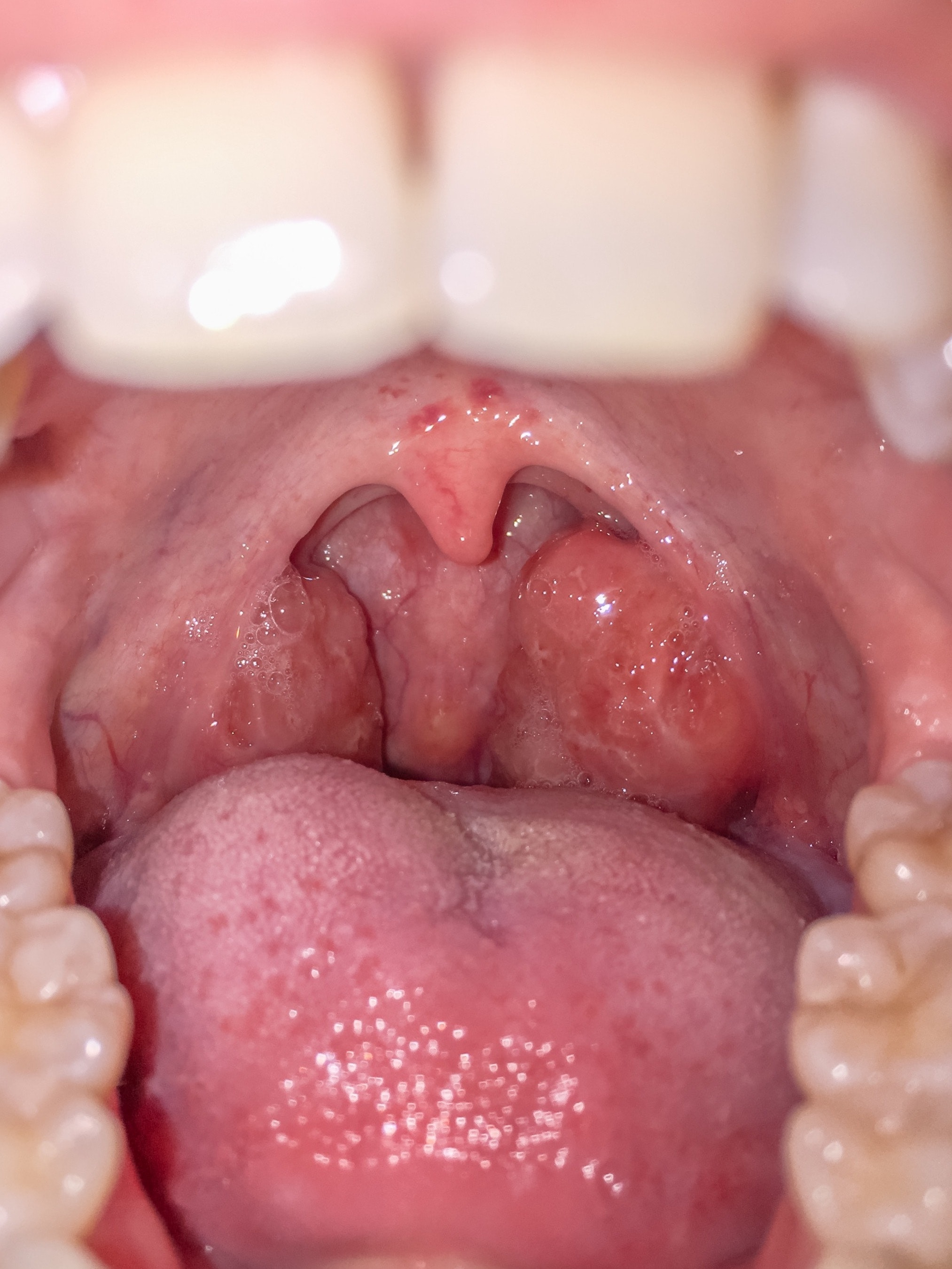An image depicting a person suffering from swollen, red tonsils symptoms