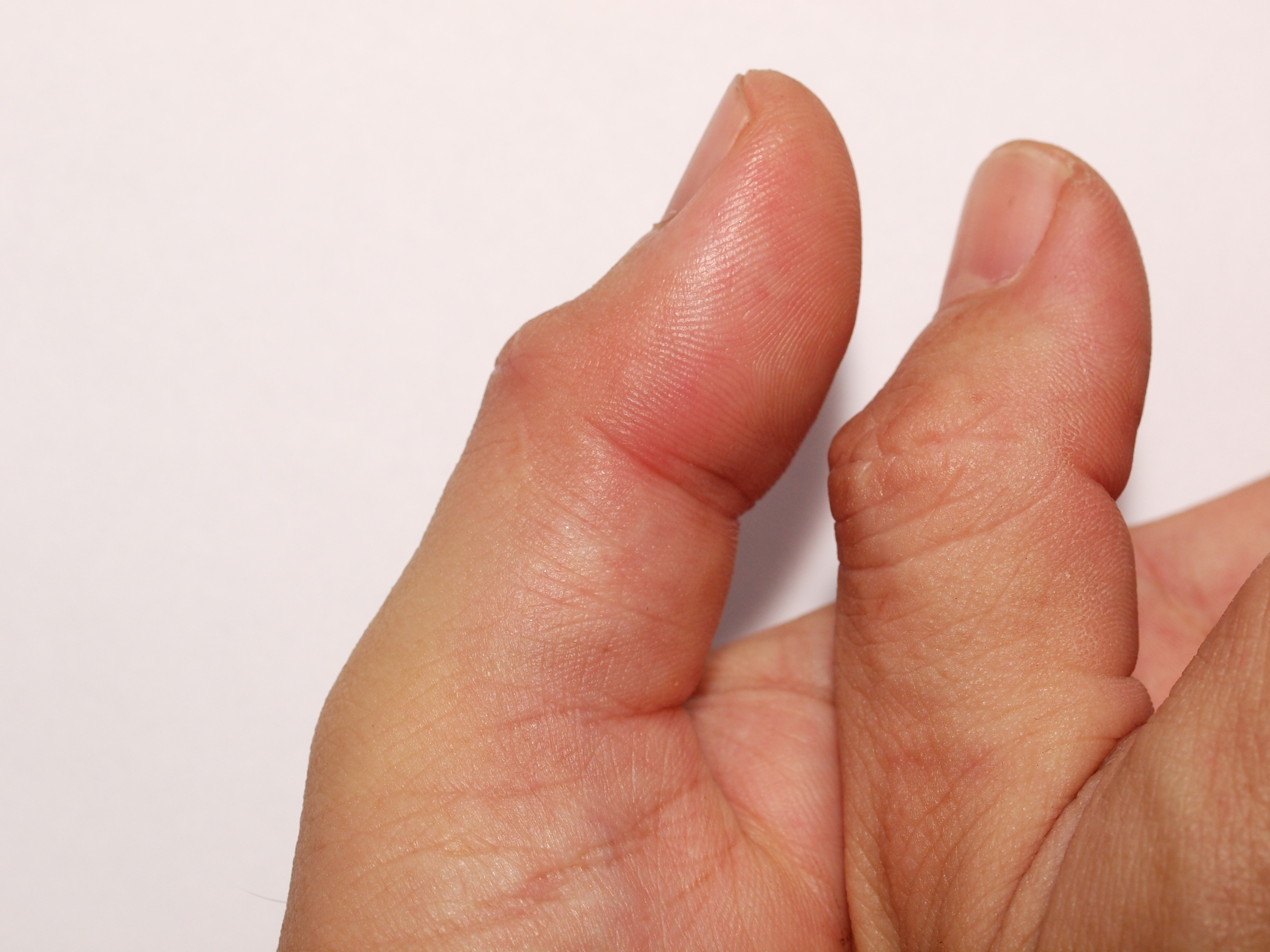 An image depicting a person suffering from swollen thumb symptoms