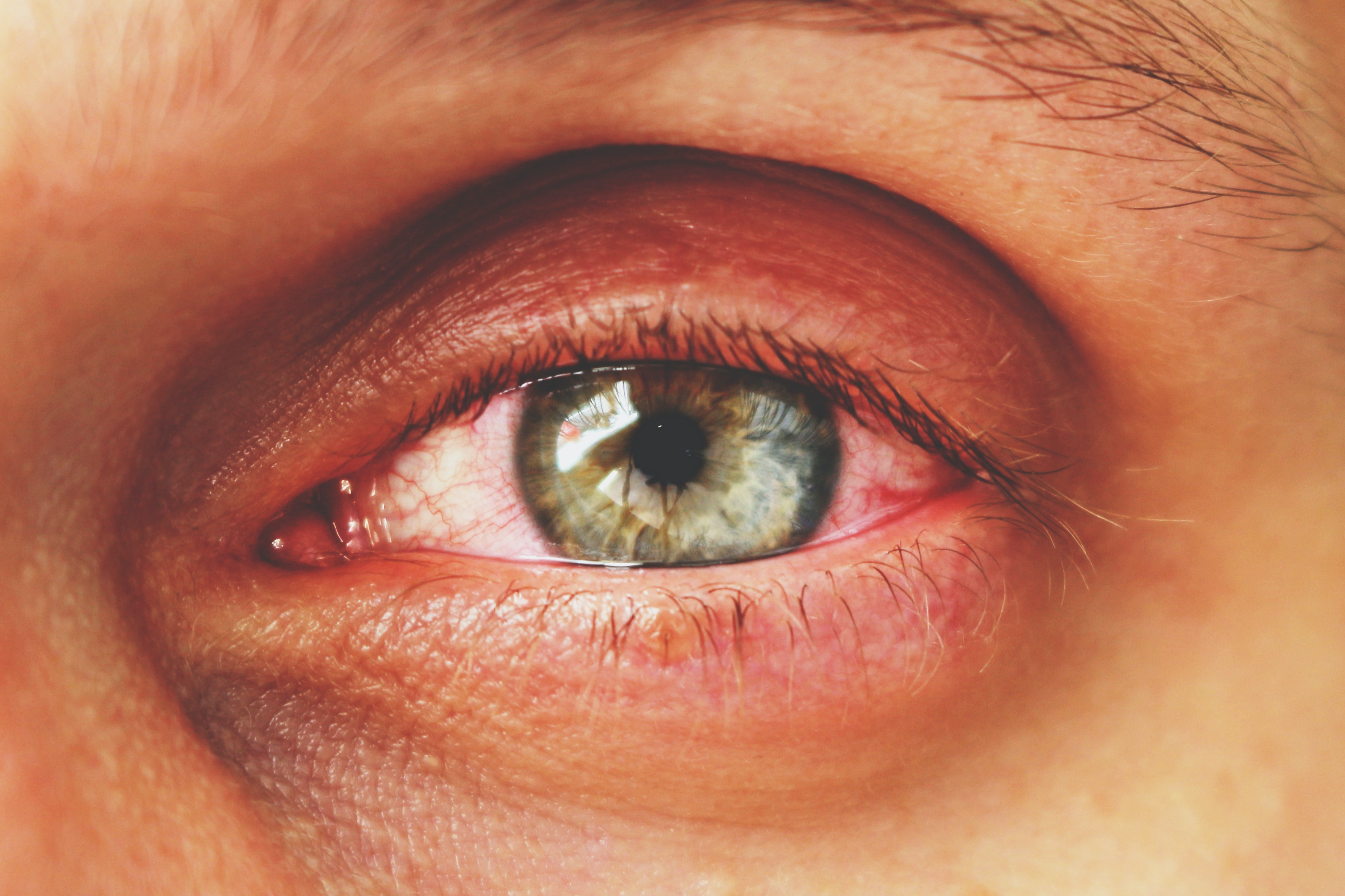 An image depicting a person suffering from tearing up in both eyes symptoms