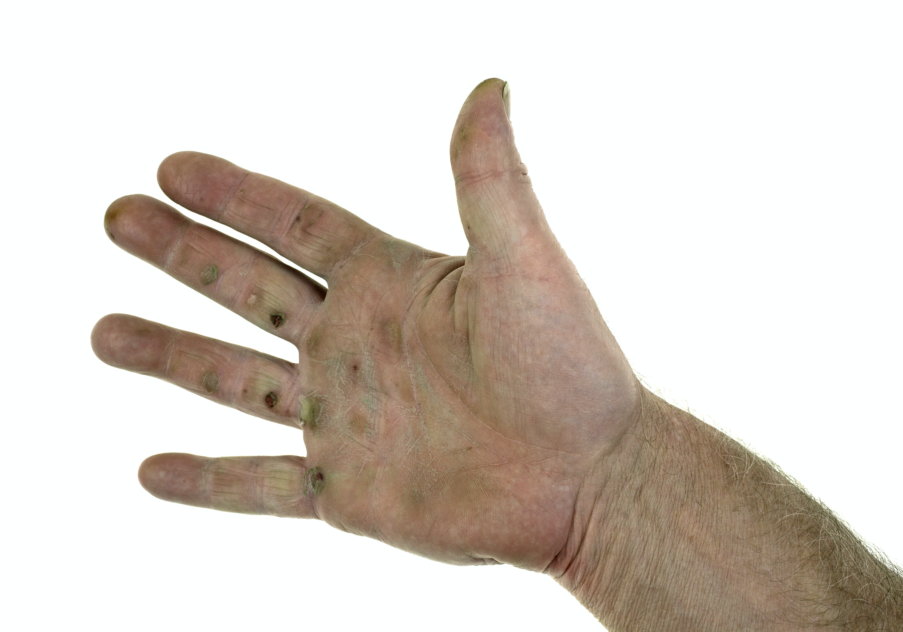 An image depicting a person suffering from thickened skin on the palm of the hand symptoms