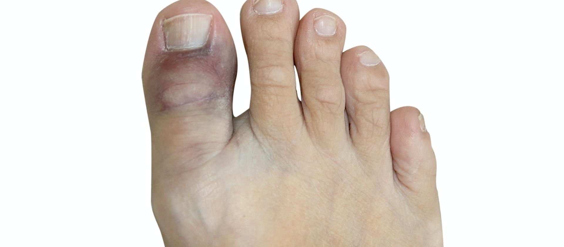 Toenail Pain Symptoms Causes Treatment Options Buoy