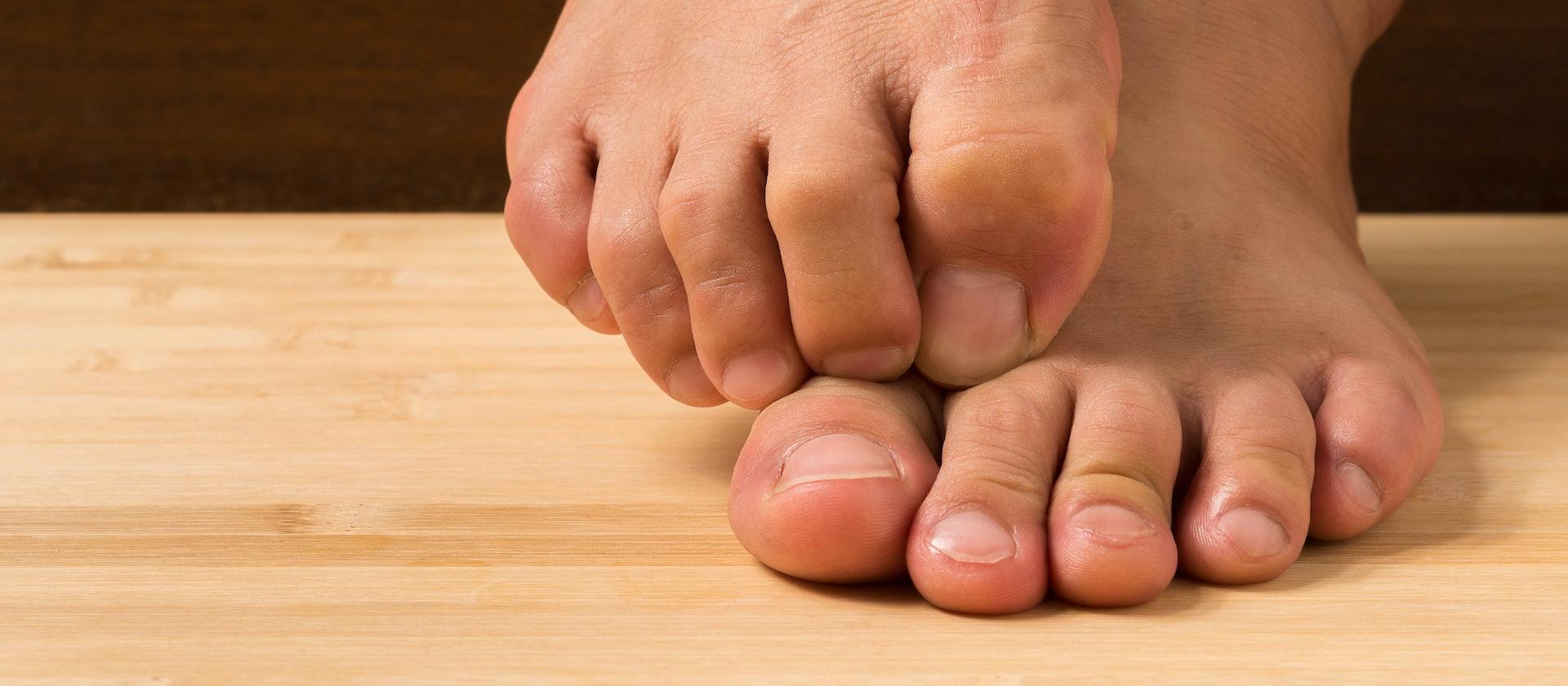 Toe Numbness Symptoms Causes Treatment Options Buoy