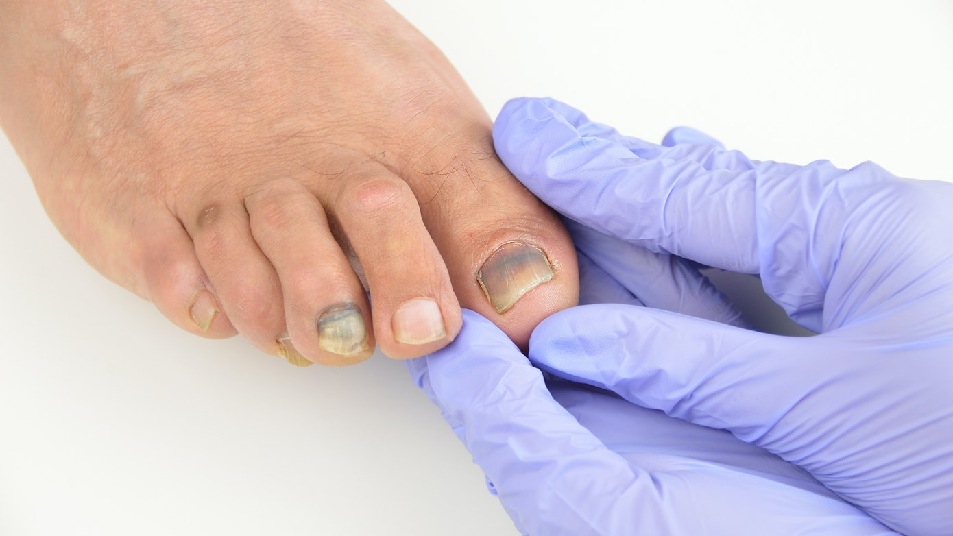 Toenail Pain | What You Need to Know & How to Find Relief | Buoy