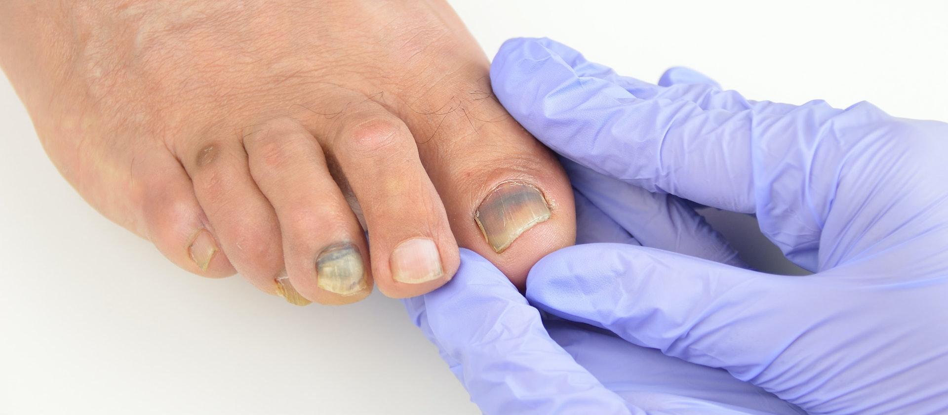A Person Experiencing Toenail Pain Symptoms