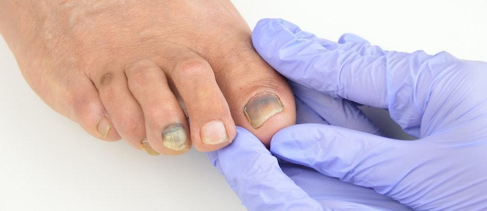 Toenail Pain Symptoms, Causes & Treatment Options | Buoy