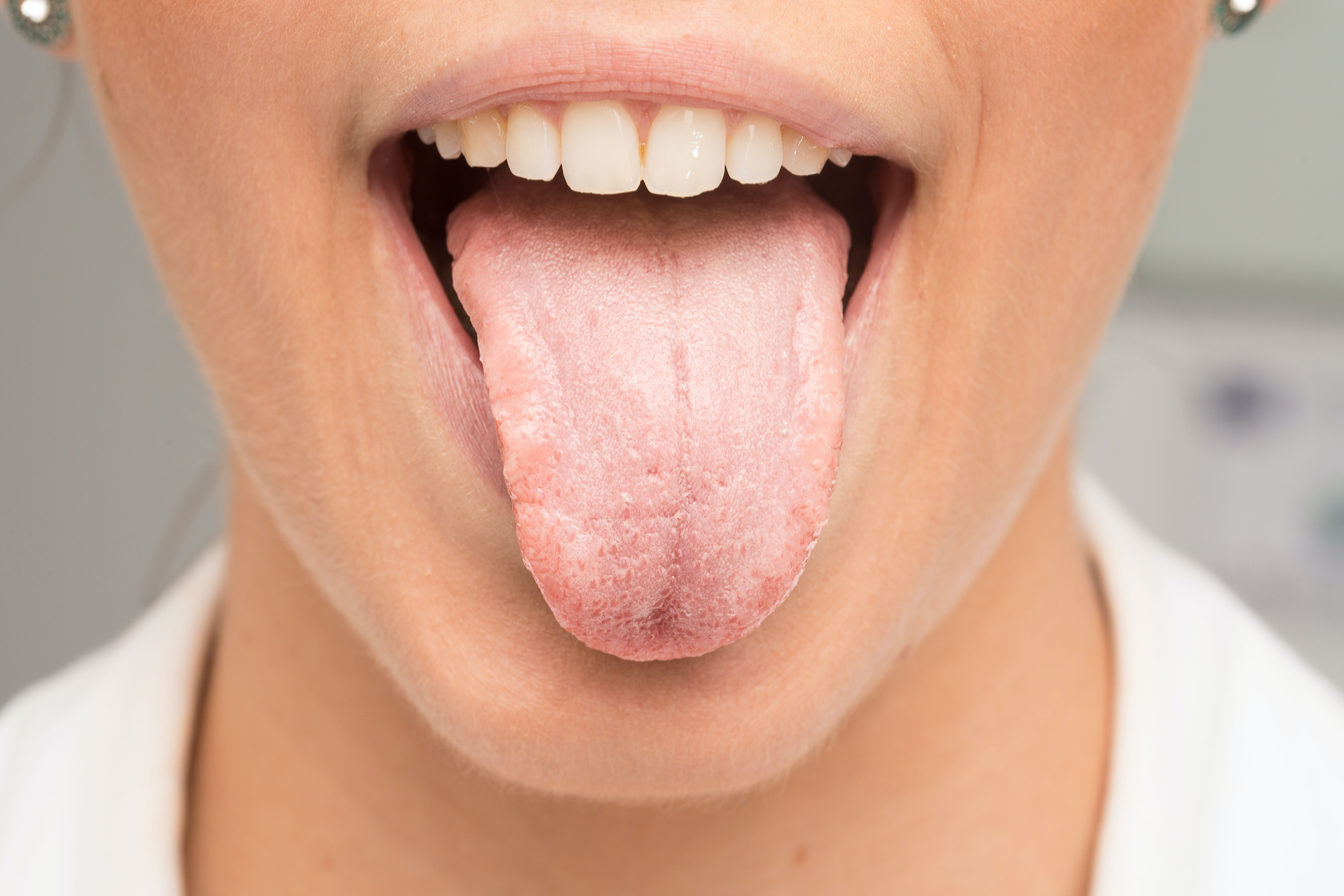 An image depicting a person suffering from tongue pain symptoms