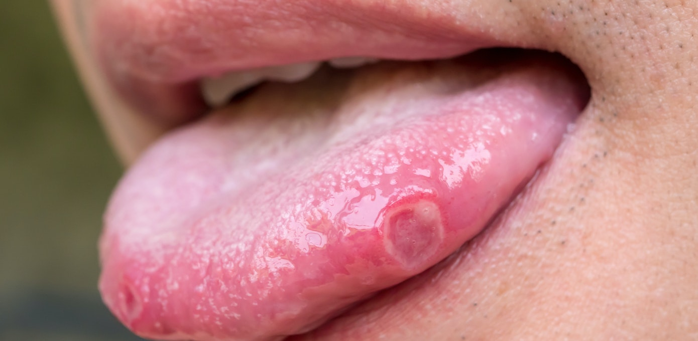 Cold sore on tongue causes