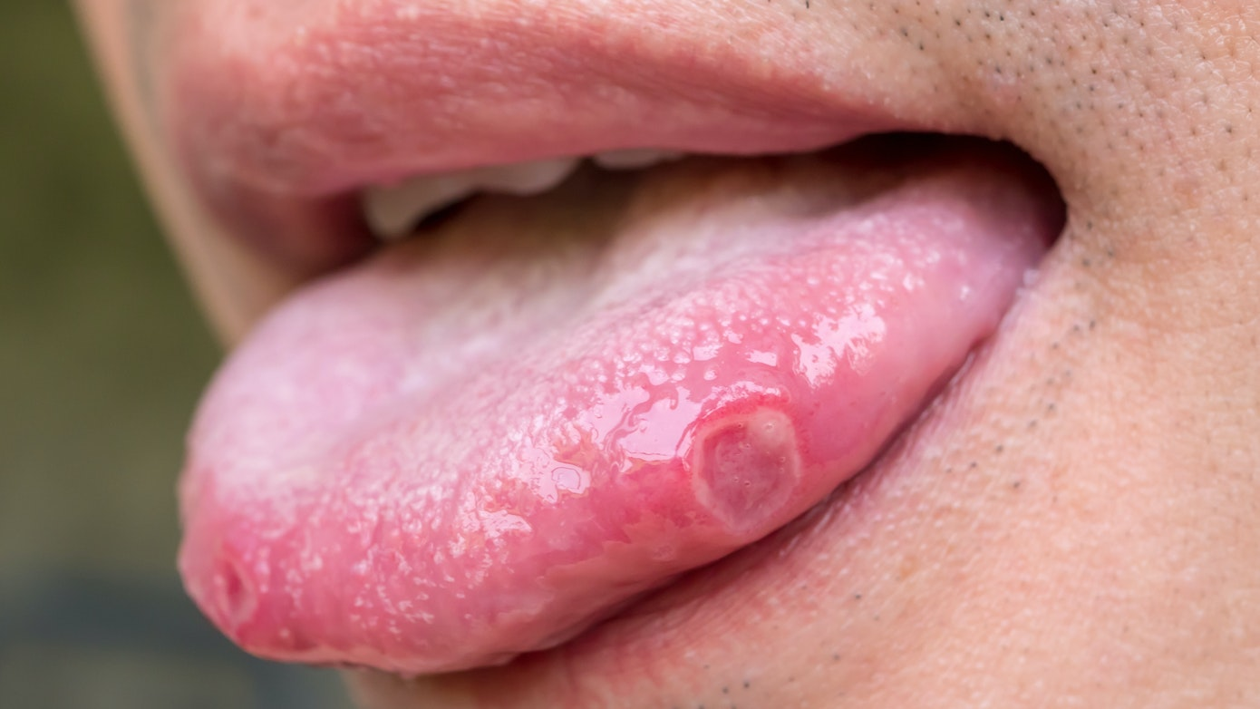 Tongue Sore Symptoms, Causes & Common Questions | Buoy