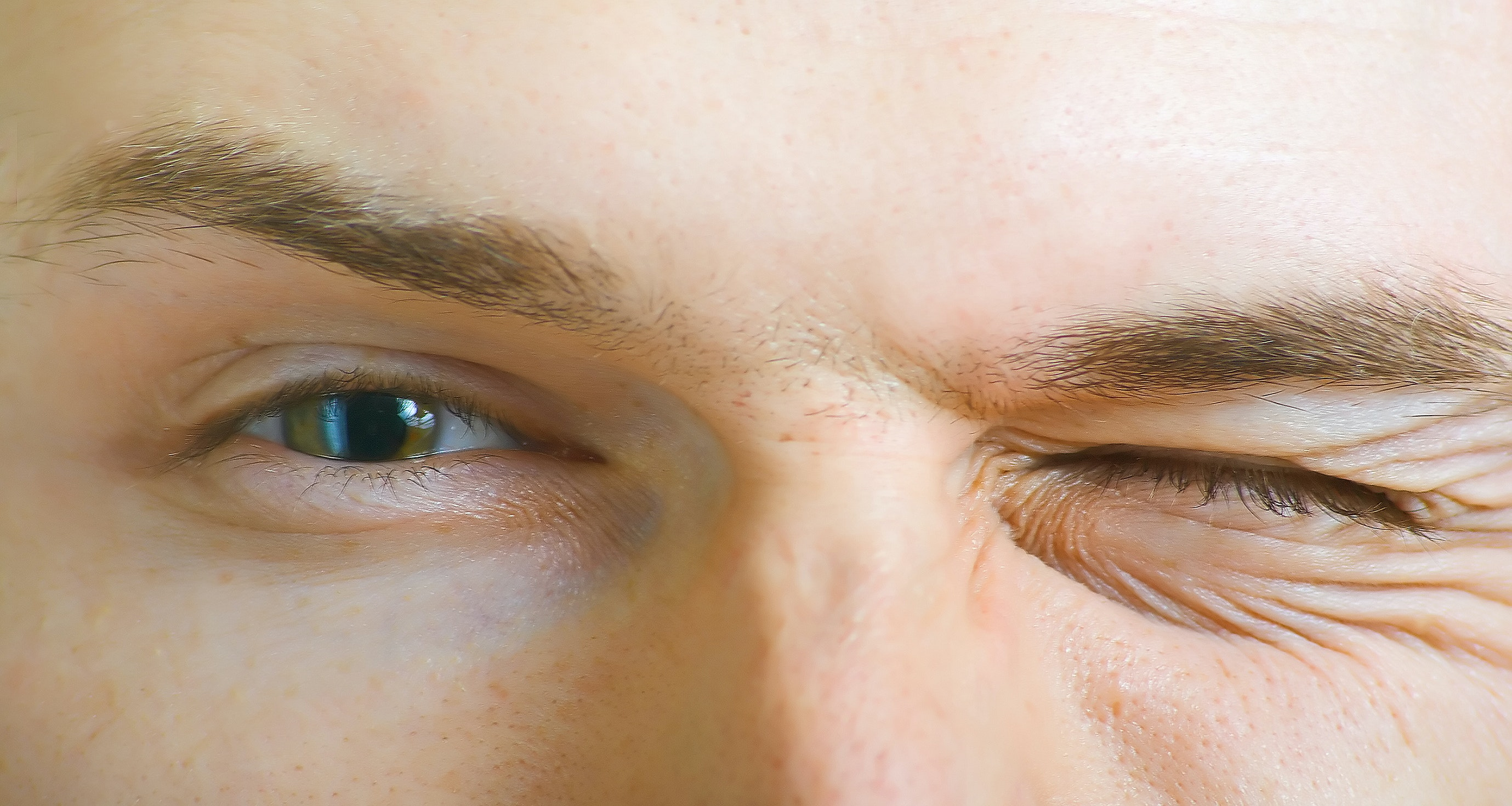 An image depicting a person suffering from twitching eye(s) symptoms