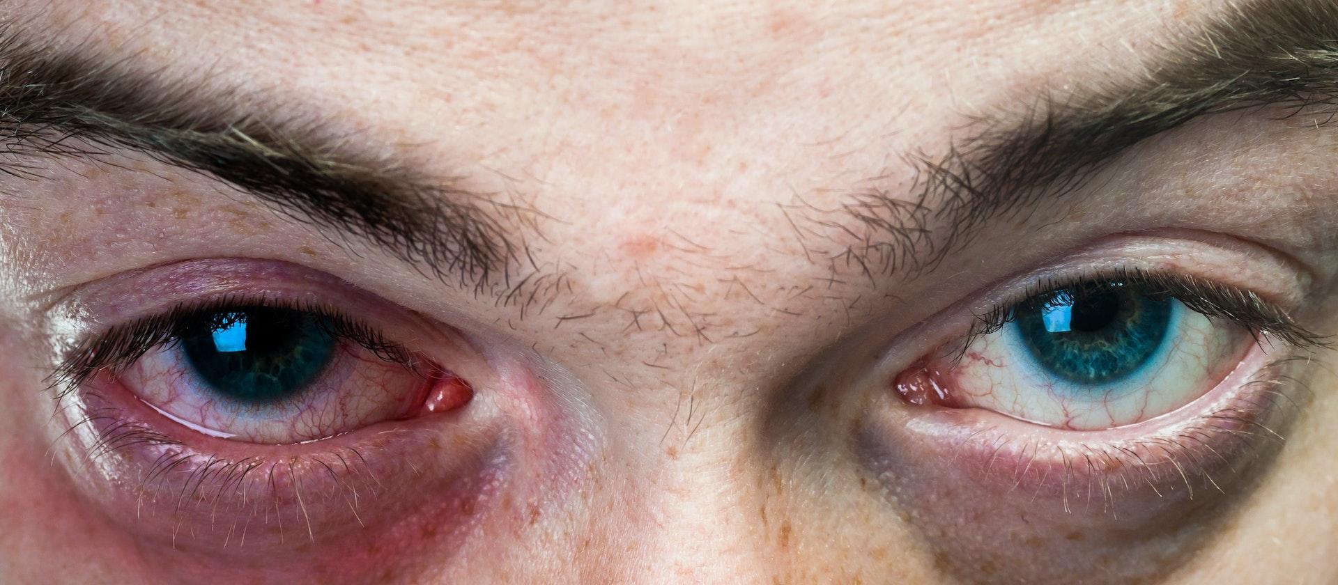 Bruised Eye Symptoms Causes Treatment Options Buoy