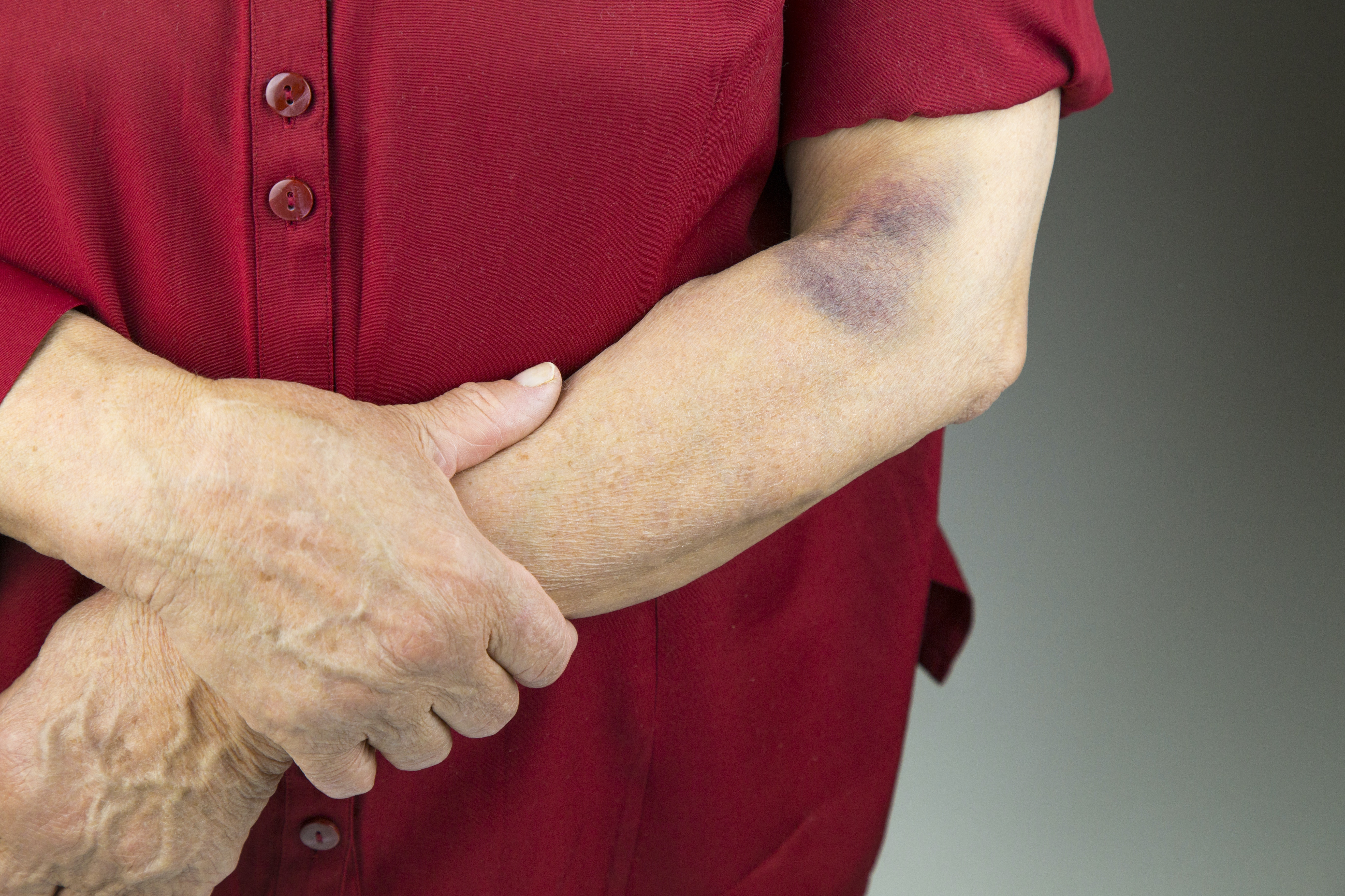An image depicting a person suffering from unexplained bruising symptoms