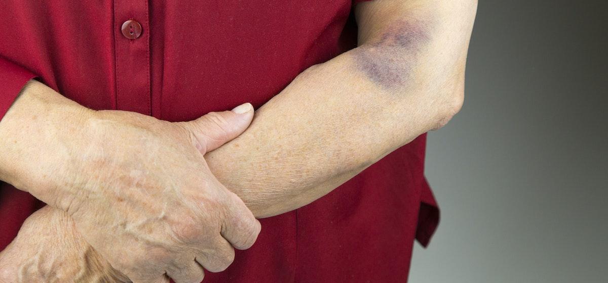 Unexplained Bruising | 9 Reasons for Random Bruising | Buoy