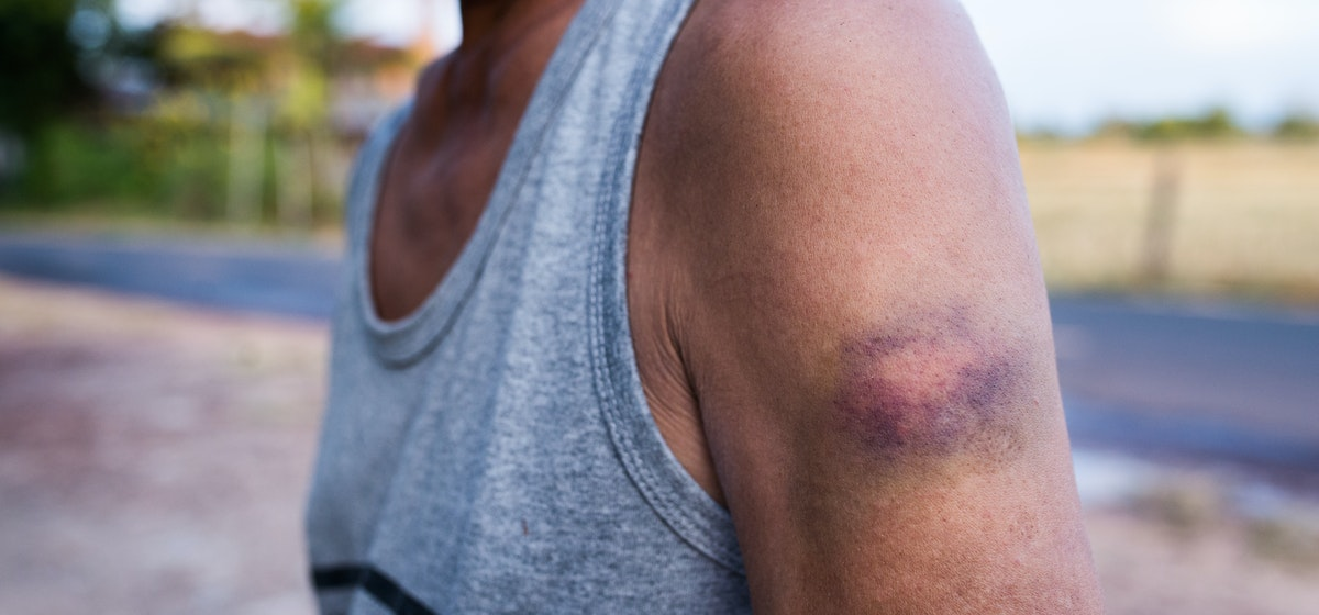 Bruise on Upper Arm | Causes & How to Treat an Upper Arm Bruise