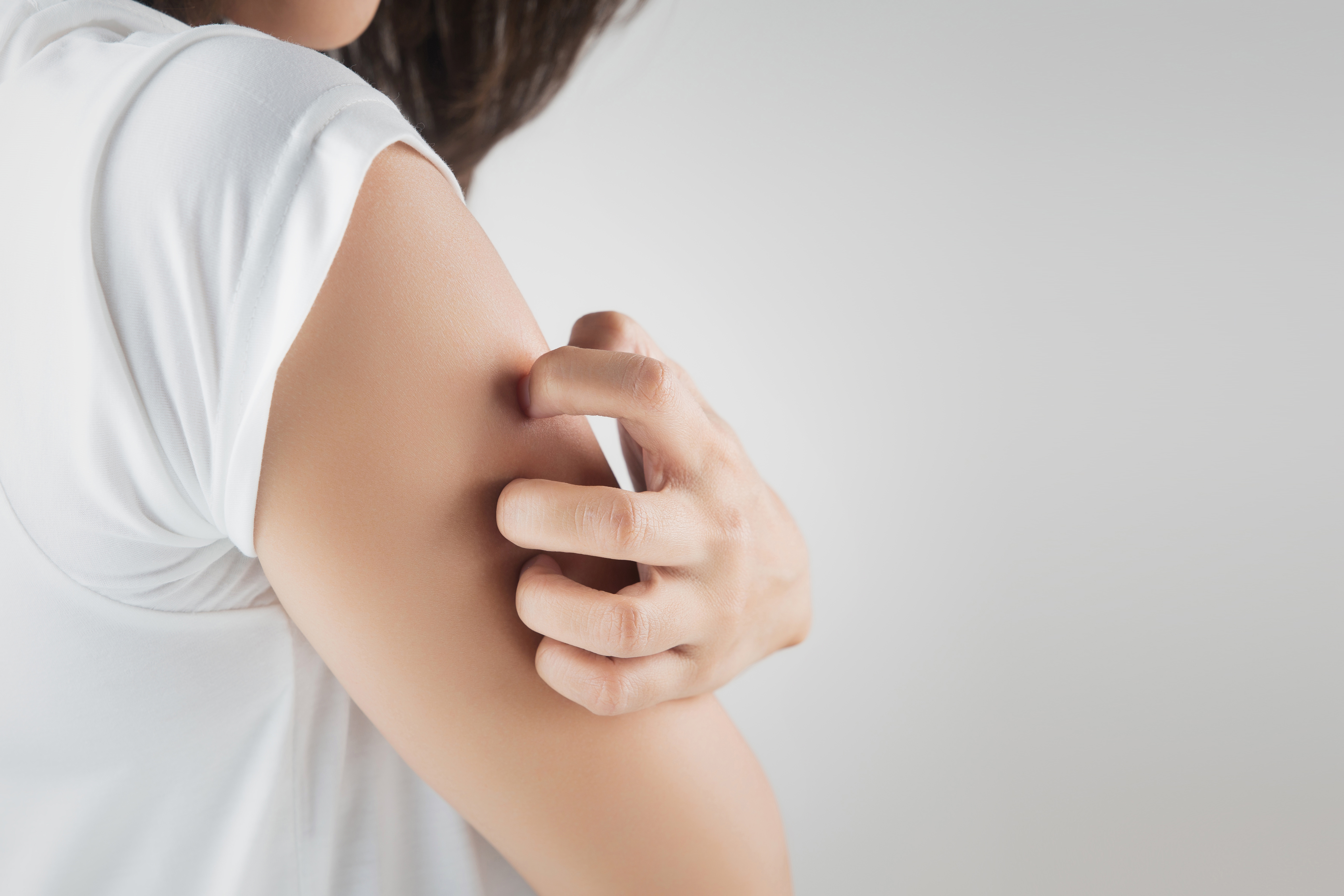 Itchy Upper Arms | Understanding 10 Causes for Upper Arm Itch | Buoy