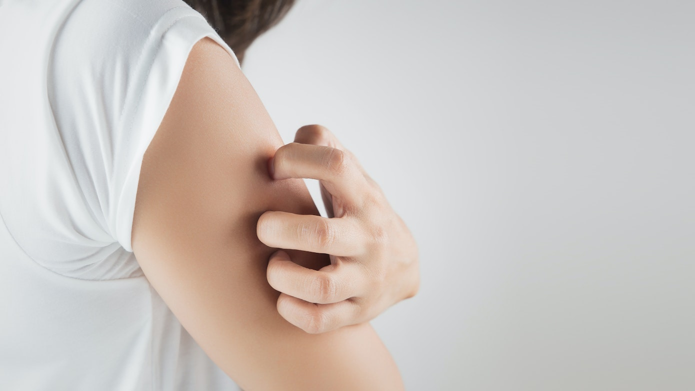 Itchy Upper Arms   Understanding 10 Causes for Upper Arm