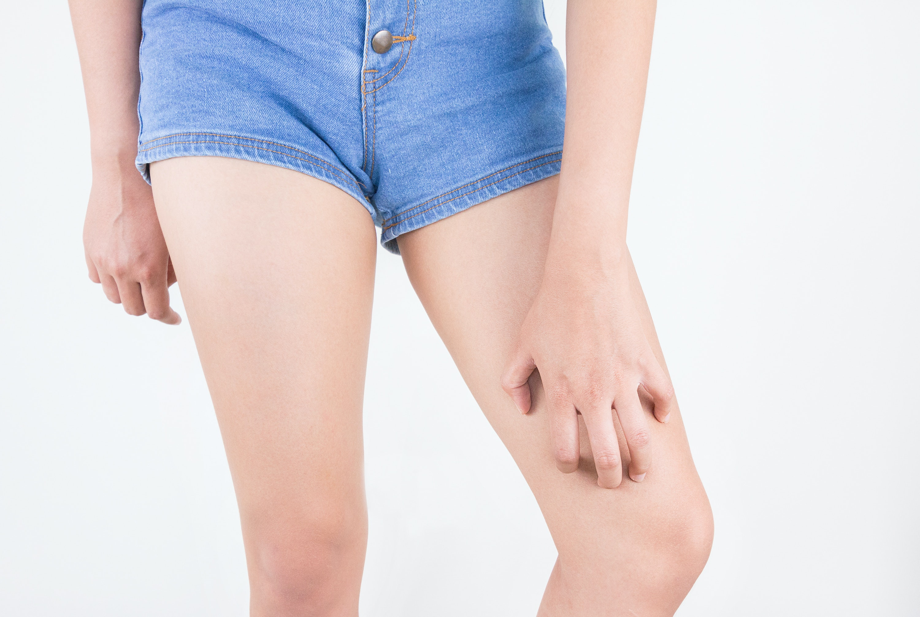 An image depicting a person suffering from upper leg itch symptoms