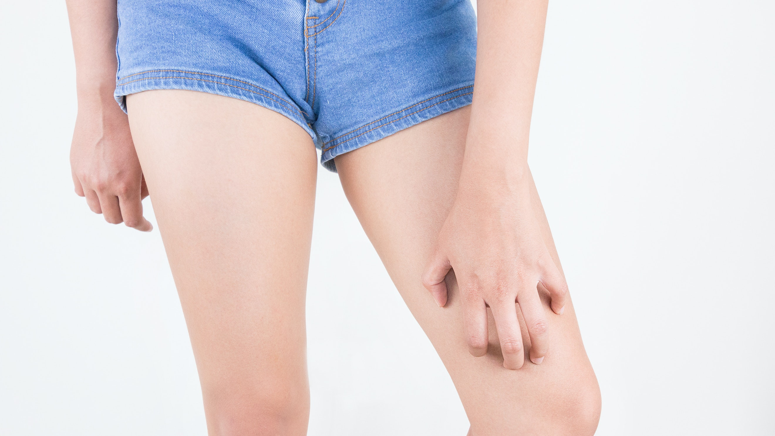 Itchy Upper Leg | 8 Itchy Thighs Causes | Buoy