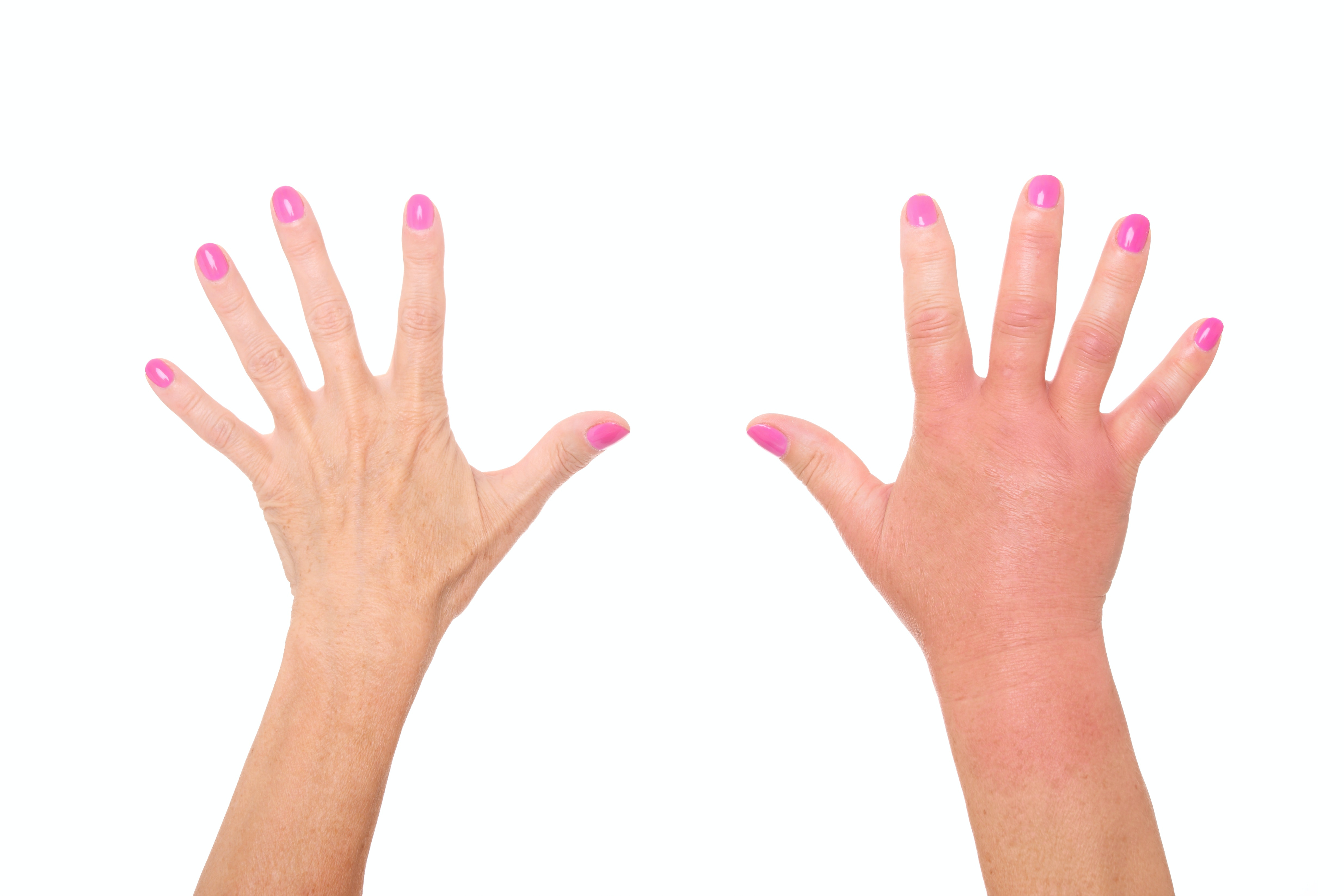 An image depicting a person suffering from warm and red hand swelling symptoms