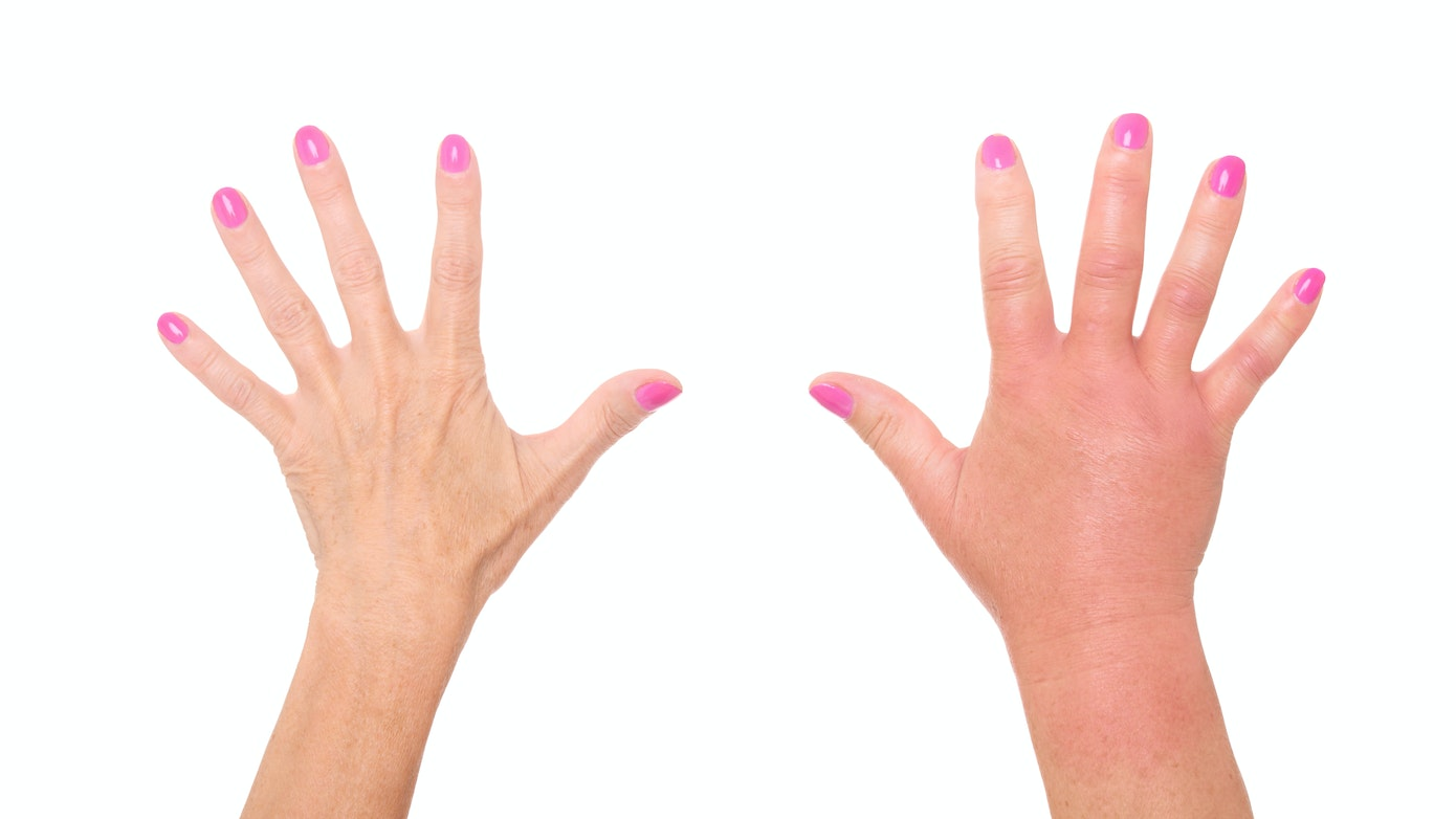 Warm and Red Hand Swelling Symptom, Causes & Questions | Buoy