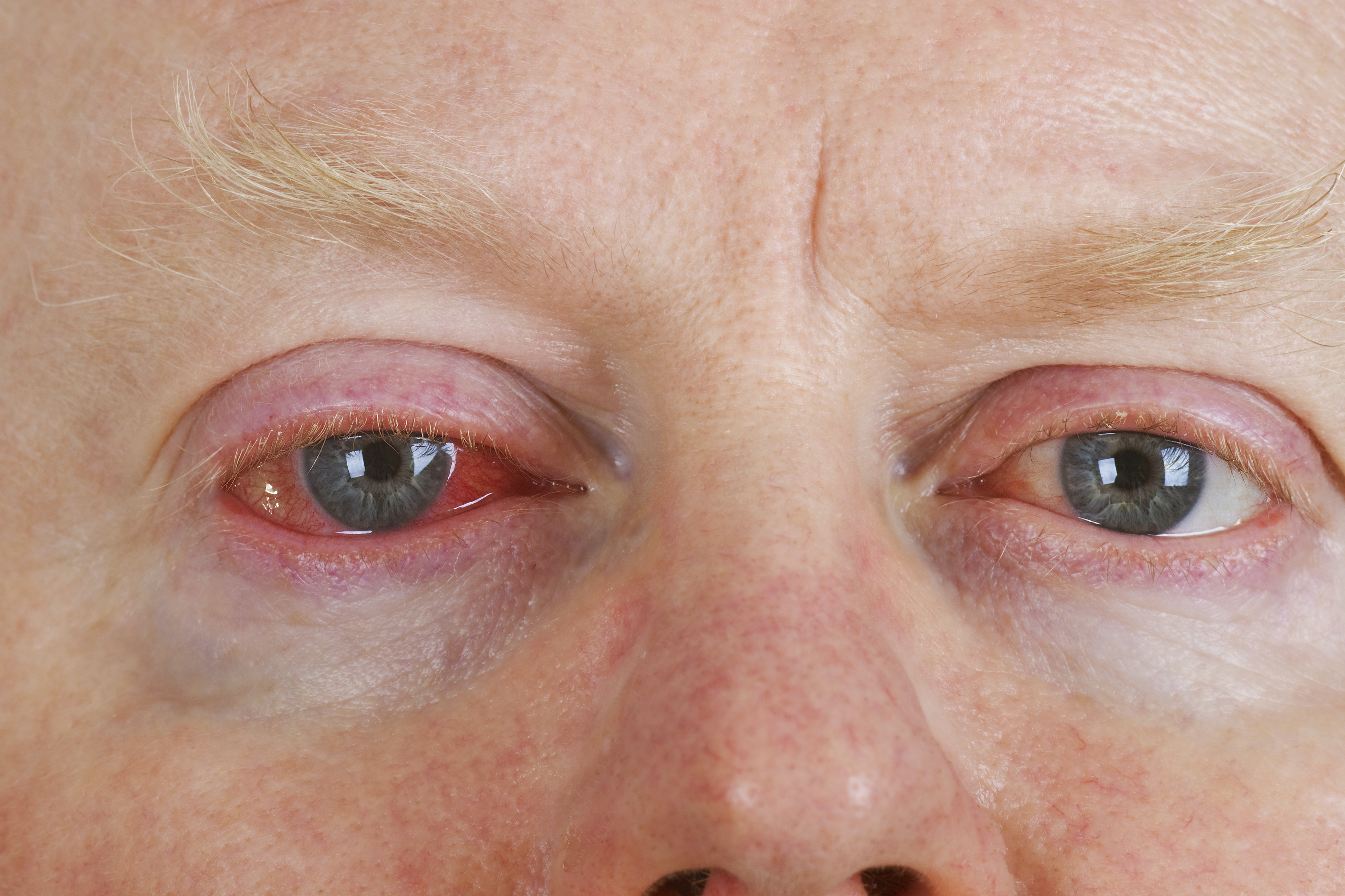 An image depicting a person suffering from wateriness in one eye symptoms