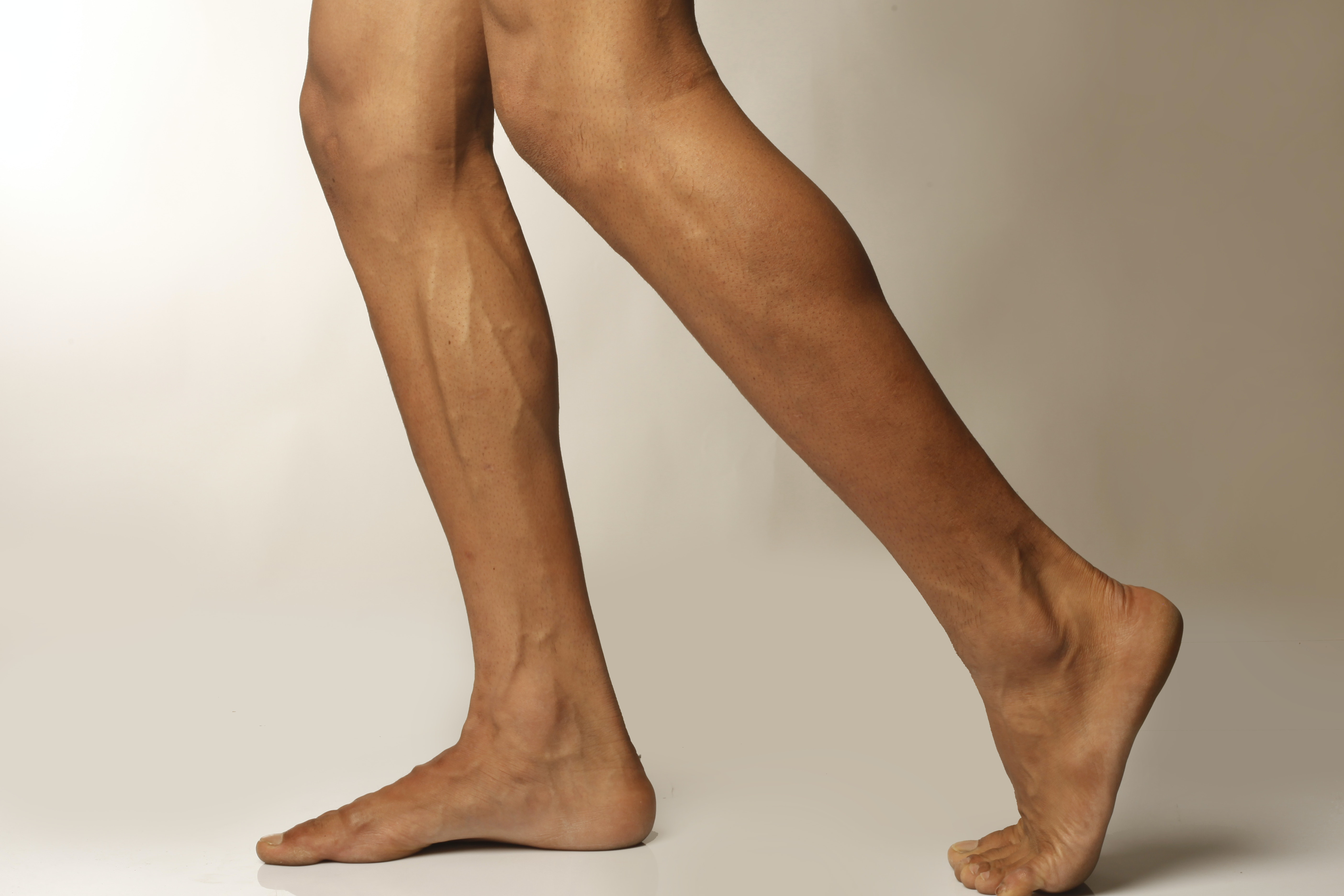 An image depicting a person suffering from weakness in one lower leg symptoms