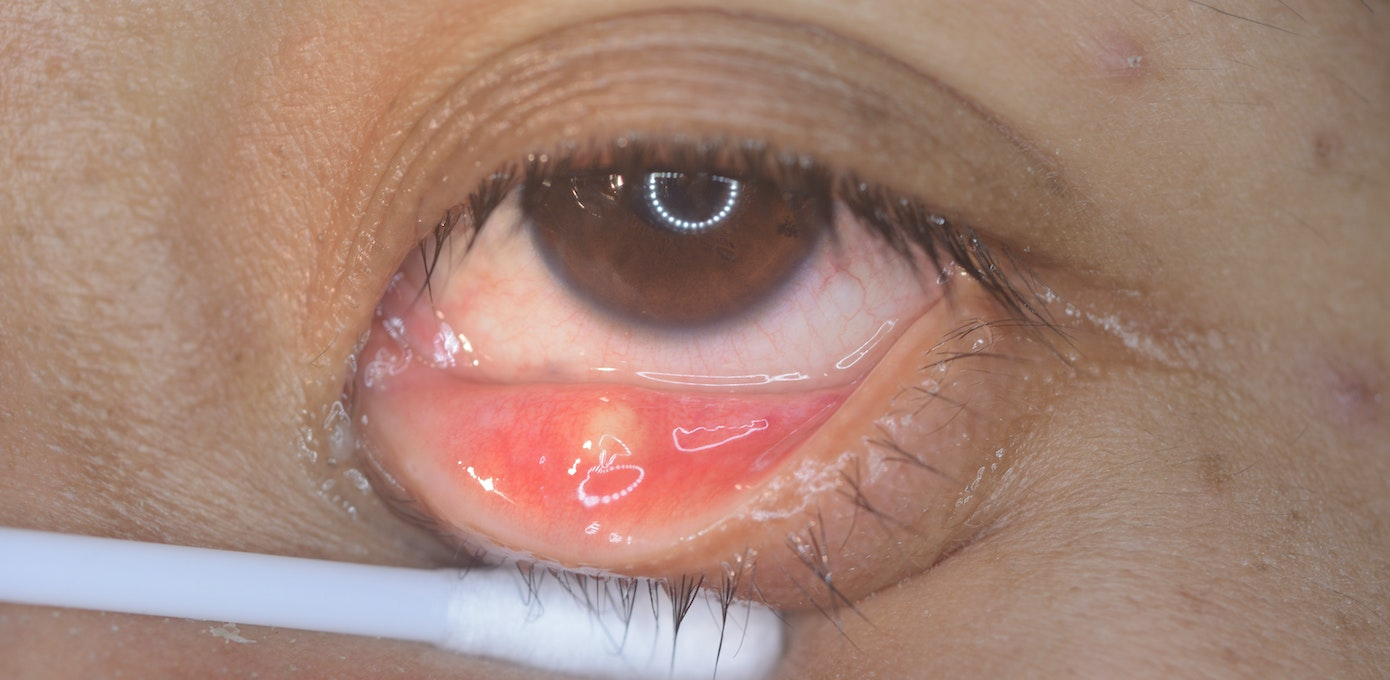 Yellow Or White Eye Bump Symptoms, Causes  Common -5481