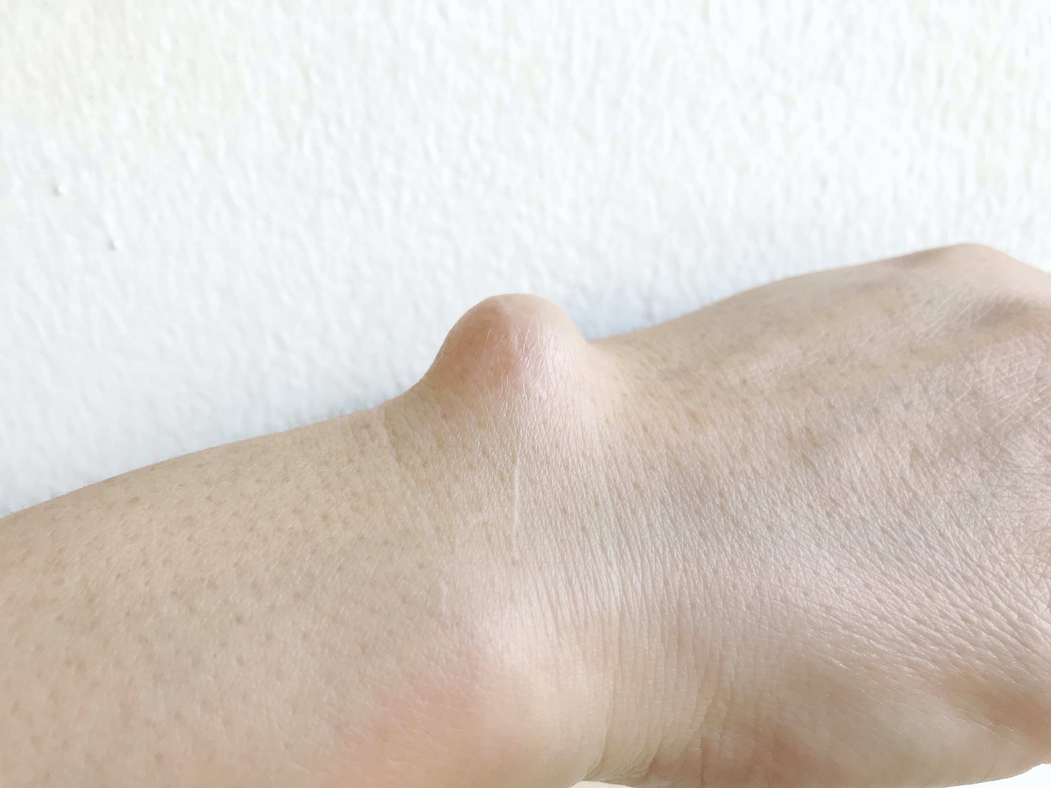 An image depicting a person suffering from yellow or white hand bump symptoms