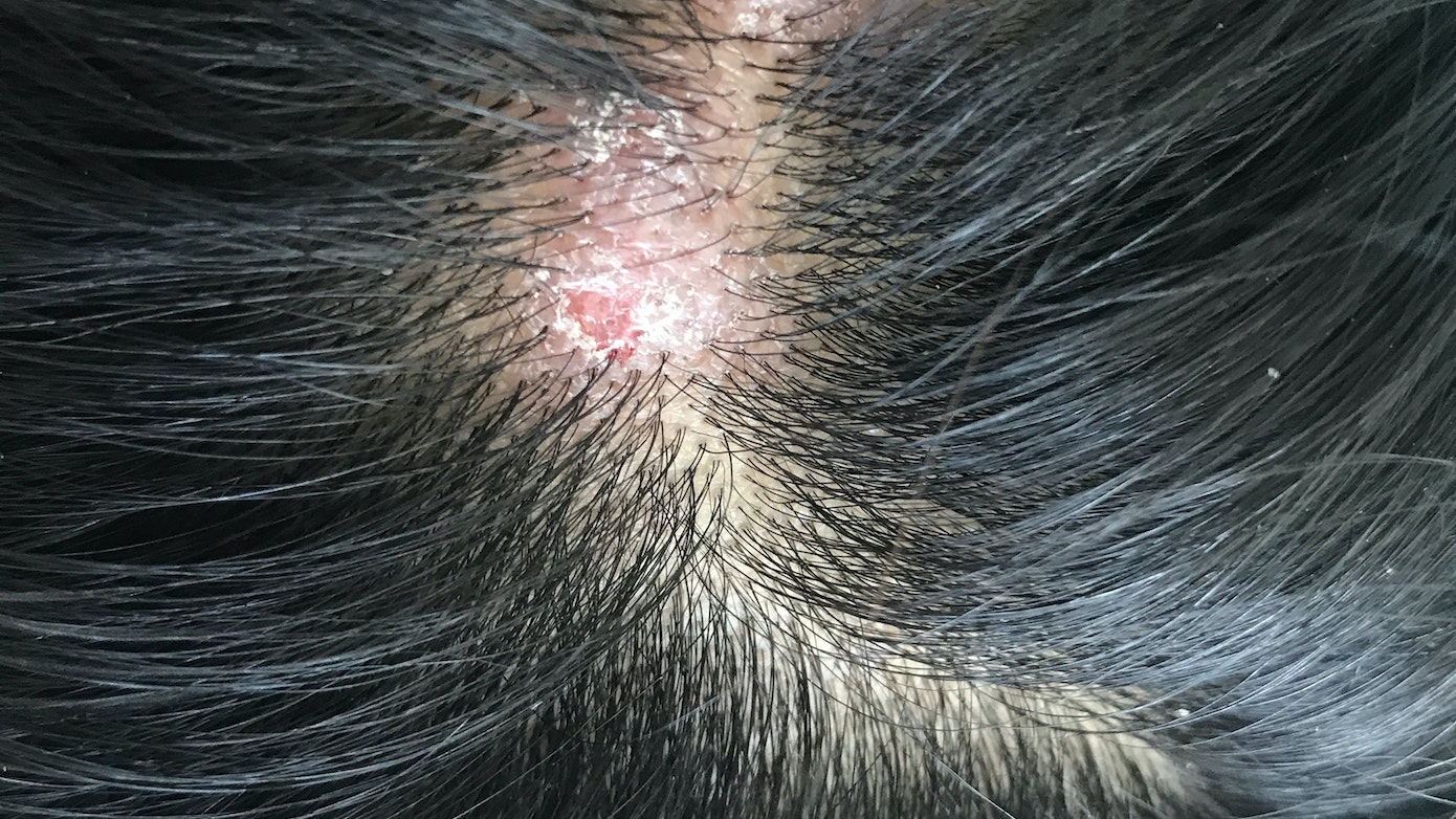 Yellow or White Scalp Bump Symptom, Causes & Questions   Buoy