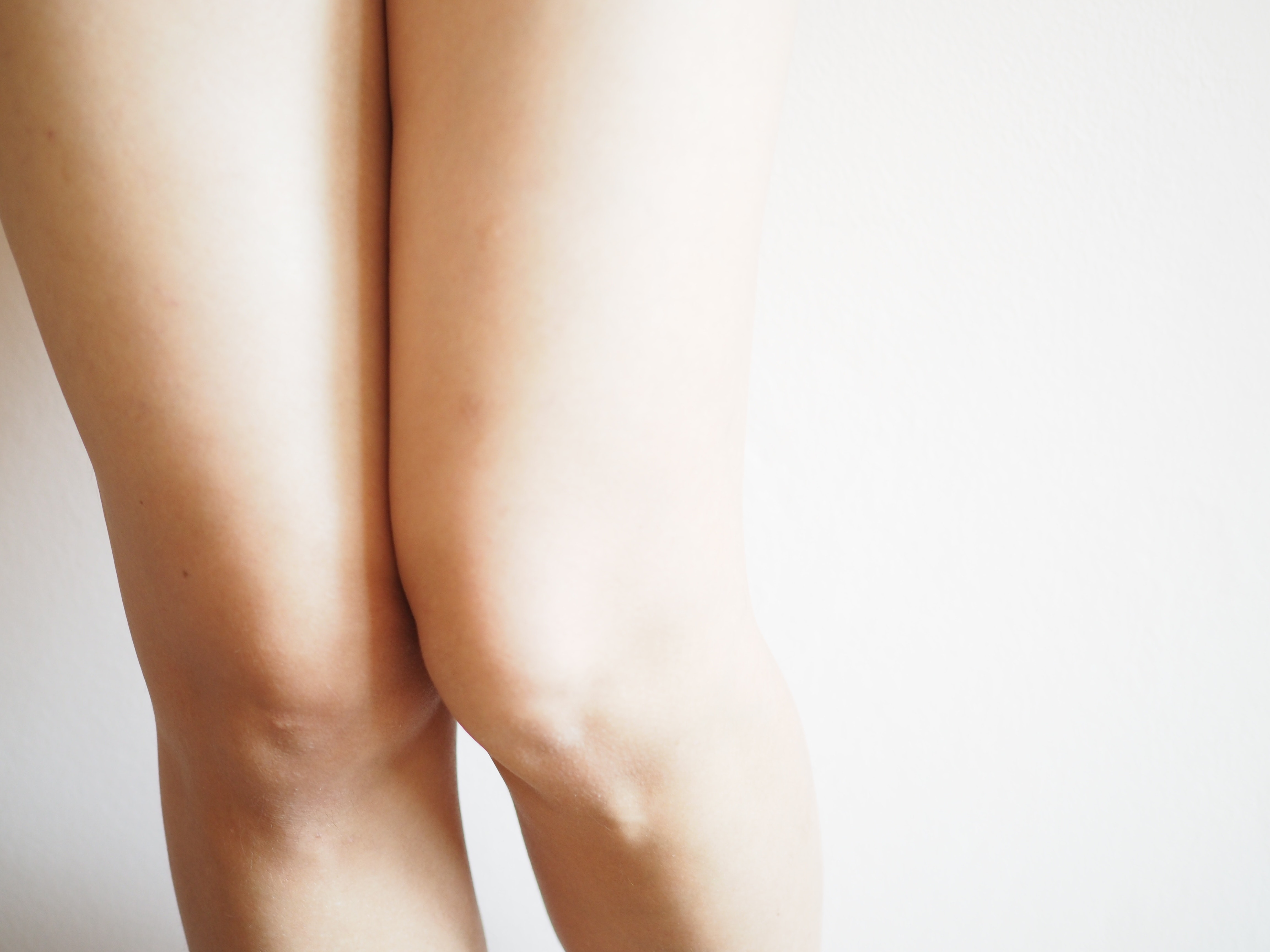 An image depicting a person suffering from yellow or white upper leg bump symptoms